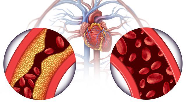 Pencegahan Penyakit Kolesterol Tinggi Selama Isolasi Mandiri di Rumah